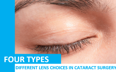 Different Lens Choices in Cataract Surgery