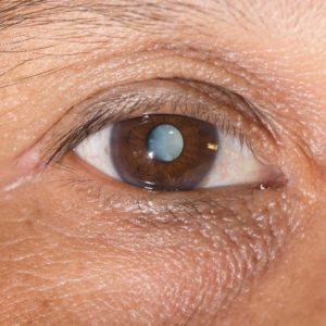 Cataract Facts and Info