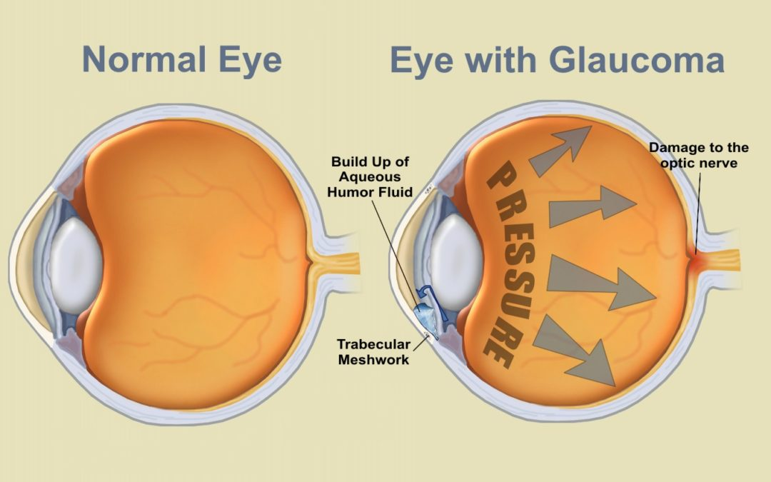 Glaucoma is a very misunderstood disease