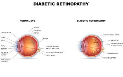 6 Out of 10 People with Diabetes Skip a Sight-Saving Exam
