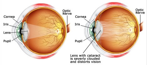 LENSAR Laser System and How it is Used in Cataract Surgery