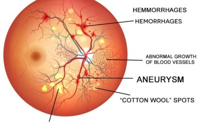 November is Diabetic Eye Disease Month